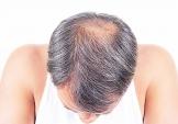 Toupet oder Haarteil